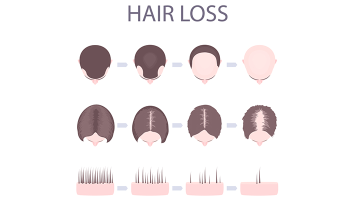 5-common-questions-about-hair-loss-2
