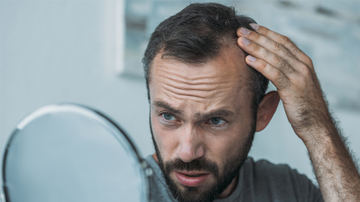 5-common-questions-about-hair-loss-3