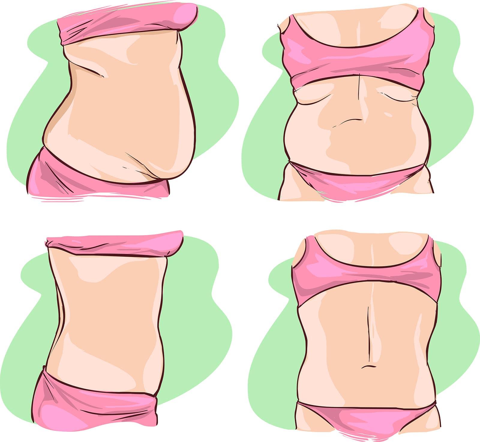 Free-Tummy-Tuck-Method-min-1