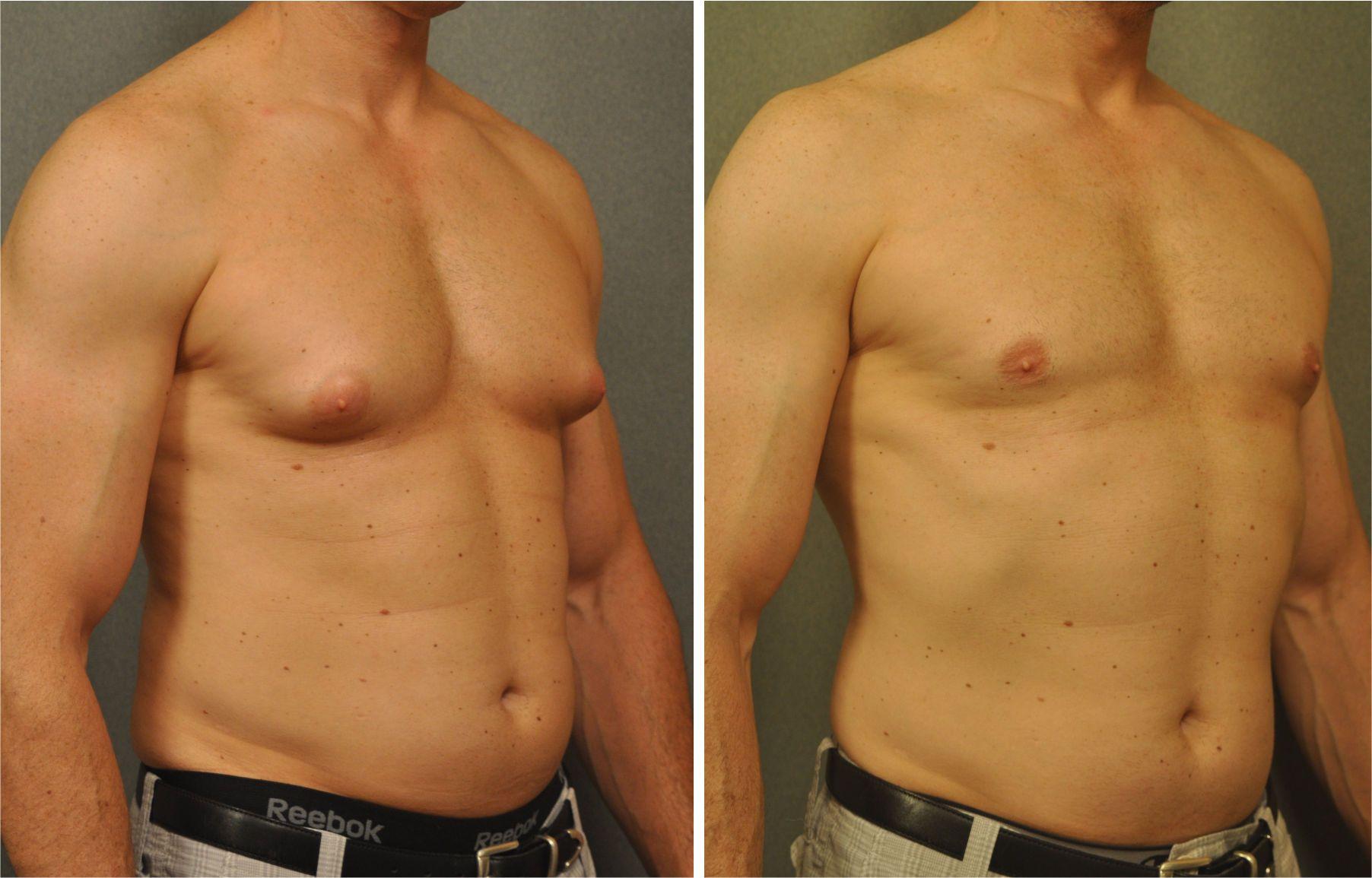 male-liposuction-min-2