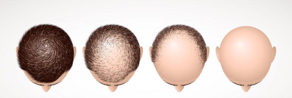 androgenetic-alopecia-min-1024x346