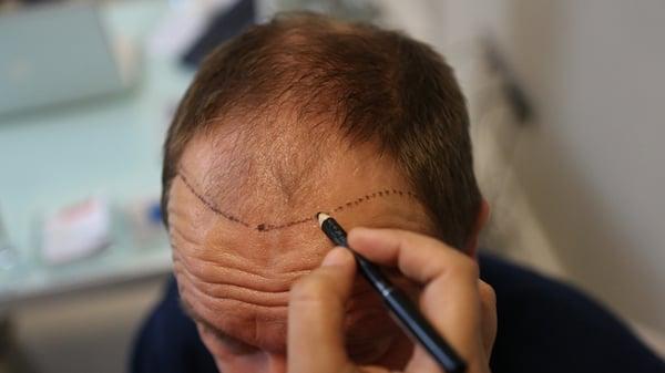 dhi-hair-transplant-1