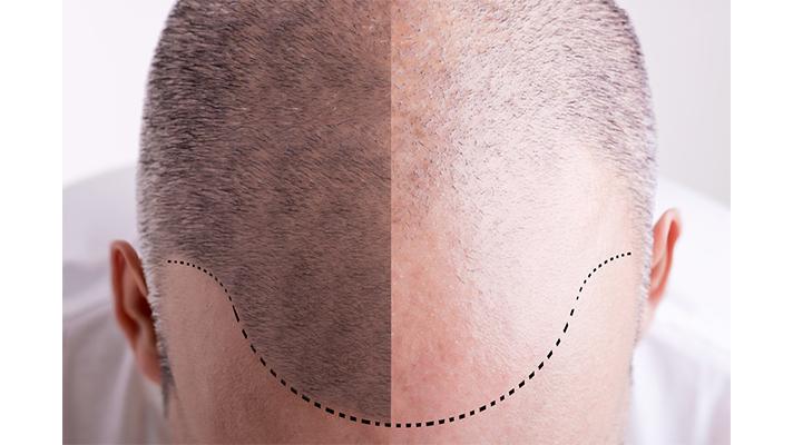 hair-loss-treatment-2