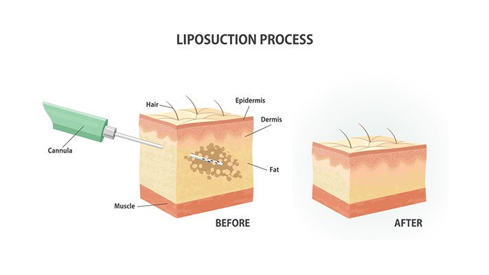 liposuction-guide-1
