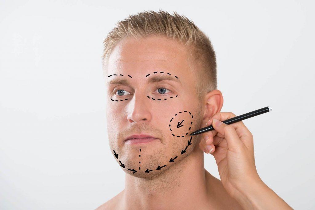 male-surgery-1024x682