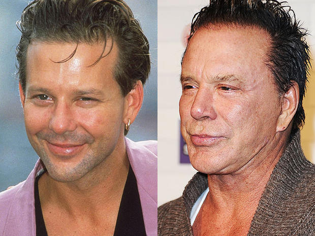 mickey-rourke-beforeafter