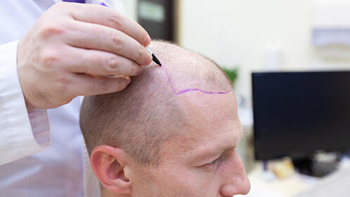 preparation-for-the-hair-transplant
