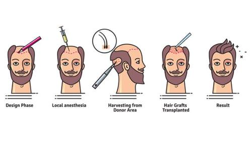 success-rates-of-hair-transplant2