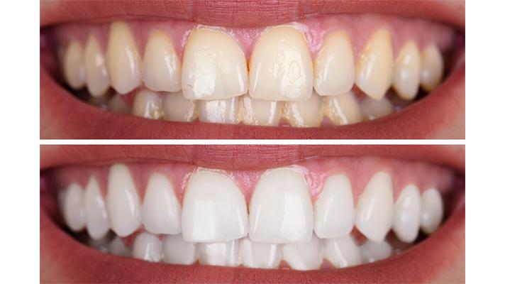 teeth-whitening-1-1
