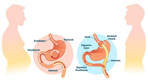 treatment-of-obesity-gastric-bypass-overview