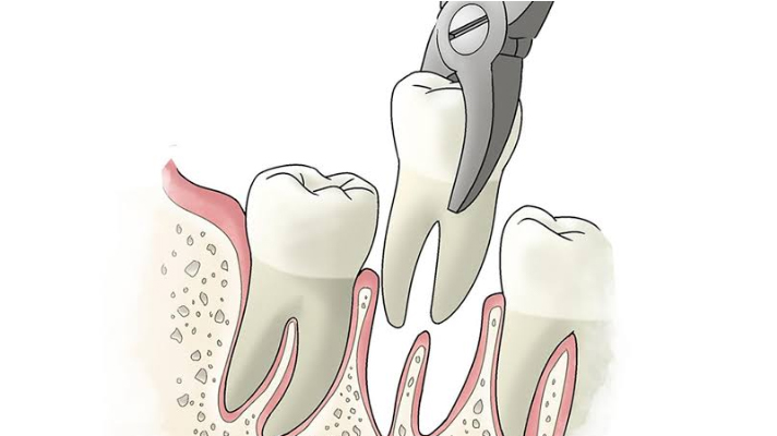 what-are-the-most-common-dental-procedures-extraction