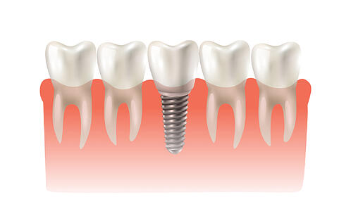 what-are-the-most-common-dental-procedures-implants