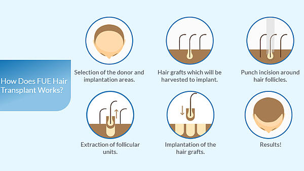 what-are-the-types-of-hair-transplant-surgery-1