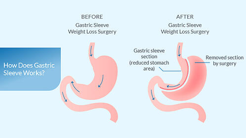 what-is-gastric-sleeve-1