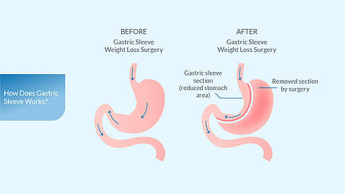 what-is-gastric-sleeve