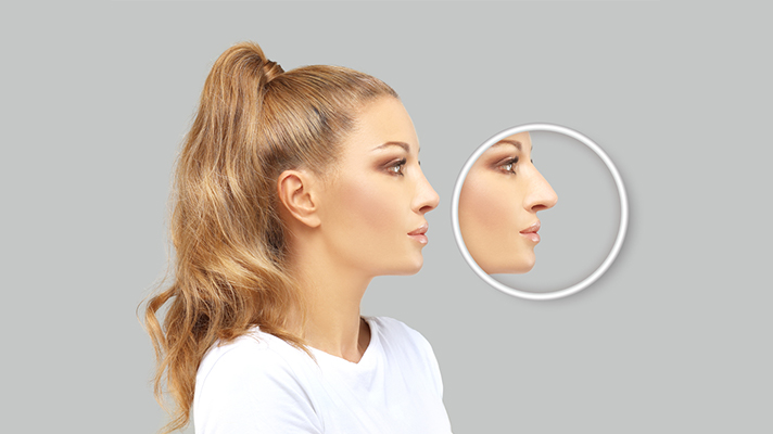 what-is-rhinoplasty