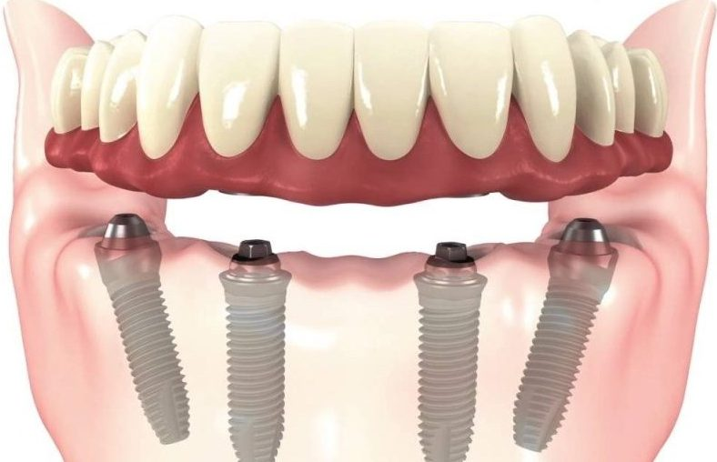 771f70d6e5a1c All-on-4 implants are a complete set of dentures which require as little as  4 dental implants per jaw to support them. All-on-4 is a treatment that  involves ...